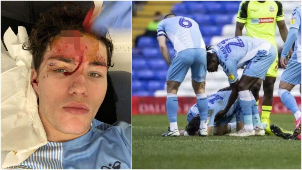 Un jugador se abre la cabeza tras un choque con un jugador y completa todo el partido