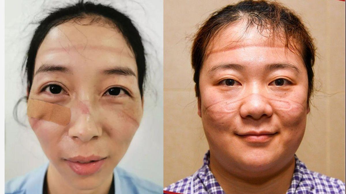 Las secuelas de horas de lucha contra el coronavirus en la cara de médicos y sanitarios chinos