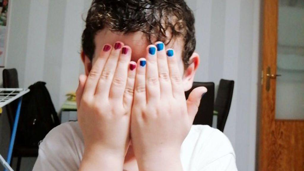 Uñas de colores inundan Twitter para apoyar al pequeño Jon