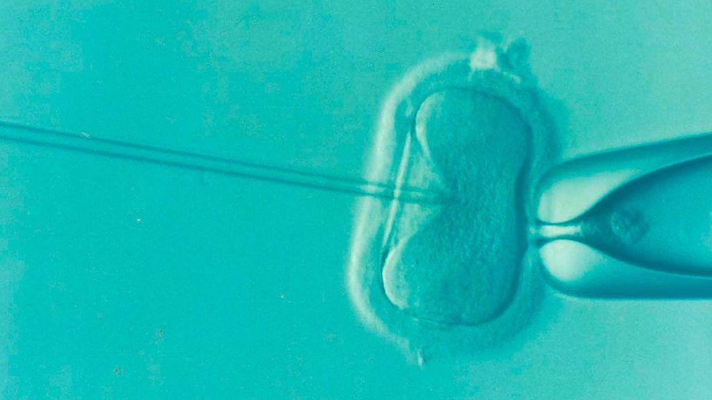 """El robot capaz de crear embriones humanos: """"Es como un laboratorio de fecundación in vitro automatizado"""""""