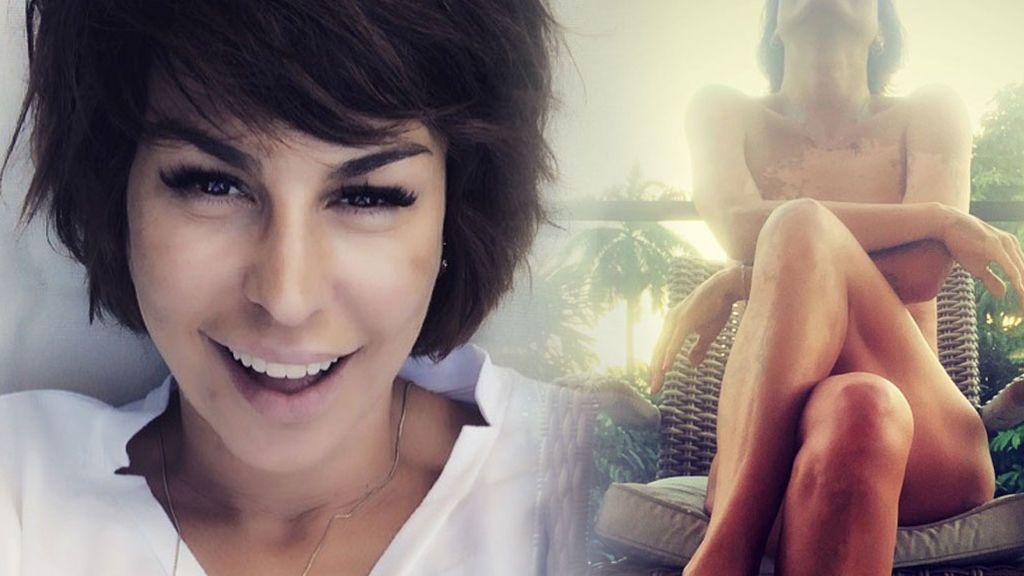 Raquel Perera abre un debate: sus fans creen que tiene vitíligo y ella lo aclara