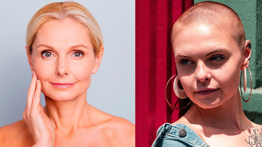 Modelo mayor de 60 y con alopecia