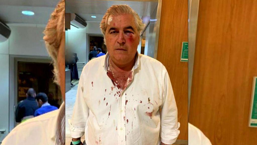 Un empresario de Sevilla le dan una paliza para robarle la recaudación