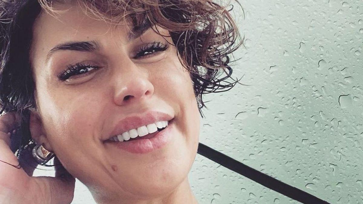 """Raquel Perera, ex de Alejandro Sanz, confiesa el problema de piel que padece: """"Heridas de guerra visibles"""""""