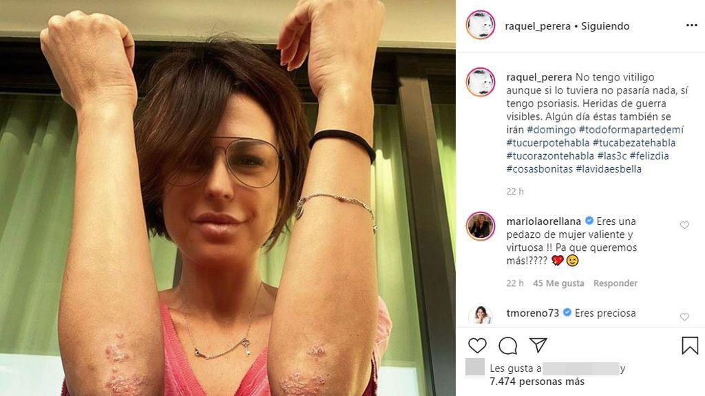 Raquel Perera confiesa que pacede psoriasis