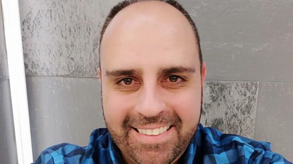 Julio Ruz 'GH' enseña el resultado de su injerto capilar
