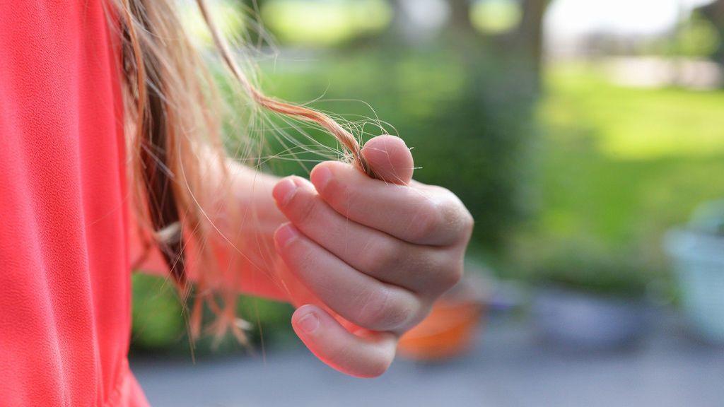 Alopecia areata: causas y tratamiento