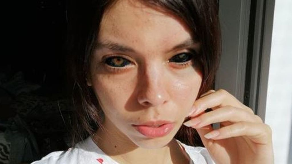 Una modelo se queda ciega tras tatuarse el blanco de los ojos de negro