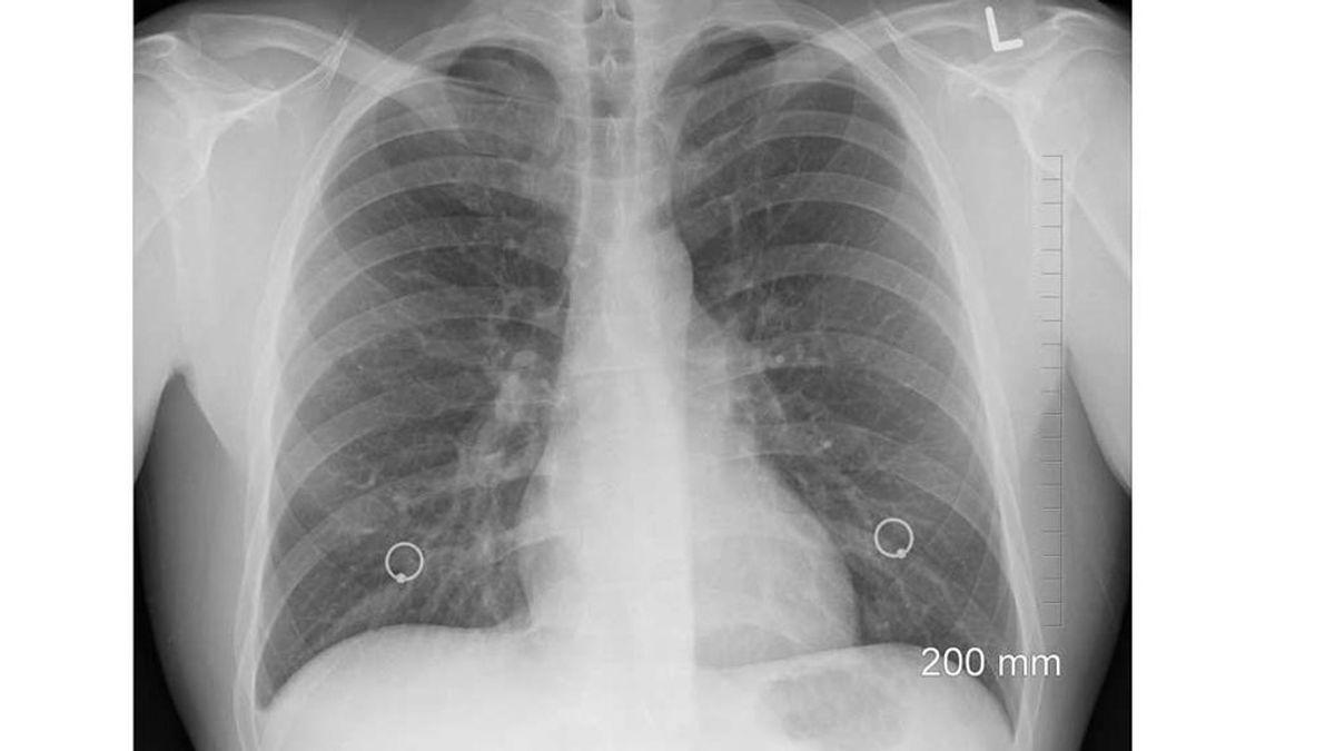 La primera autopsia de un fallecido por coronavirus demuestra cómo deja los pulmones