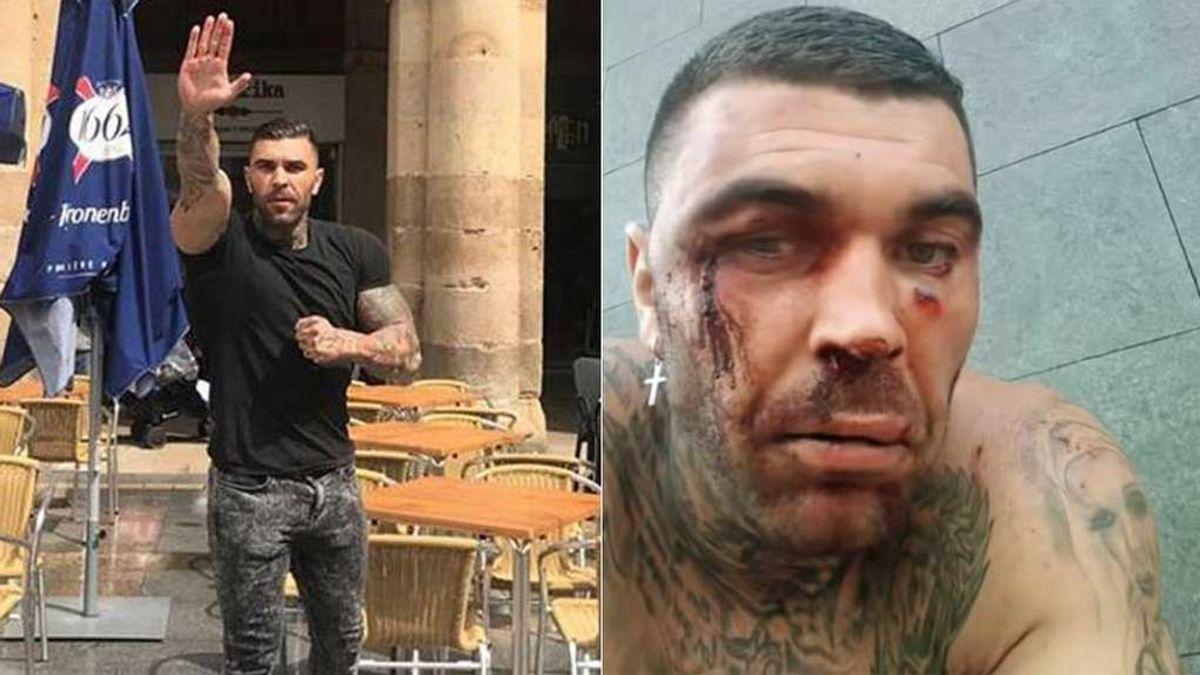 Manuel Herrera, el ultra bético que agredió a un hombre en Bilbao, sufre una paliza en los carnavales de Tenerife