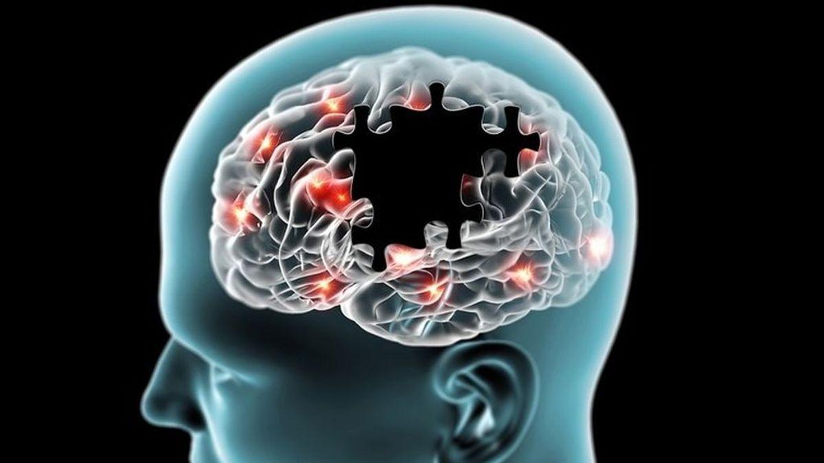 Tras una lesión cerebral el cerebro puede recuperar sus funciones en tan solo 15 minutos