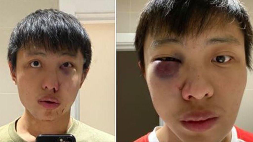 Atacan a un joven singapurense en Londres: 'No quiero tu coronavirus en mi país'
