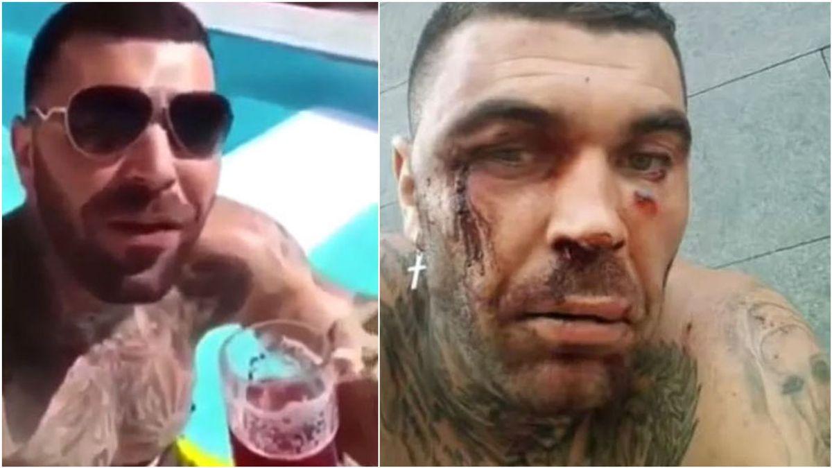 """""""Destrozado, me encanta Tenerife, estáis todos invitados"""": Manuel Herrera, el ultra del Betis que agredió a un joven en Bilbao y recibió una paliza en los carnavales canarios"""