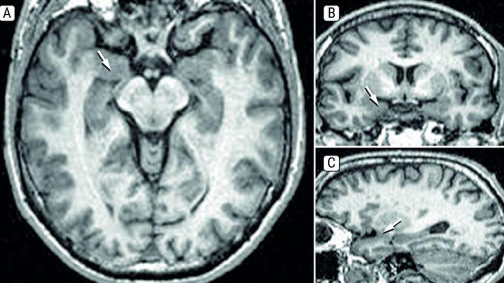 Cortes del cerebro humano