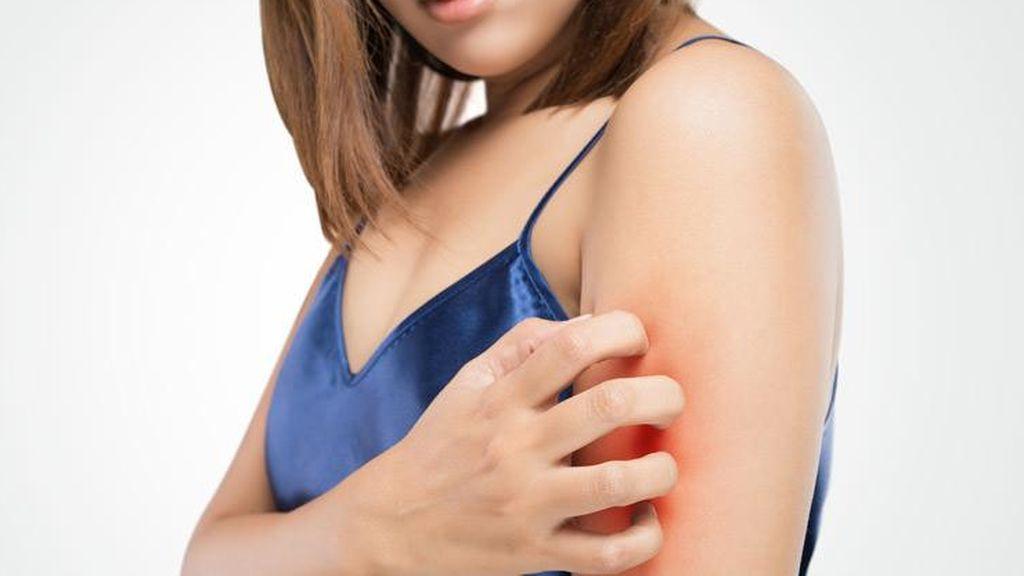 La piel atópica también puede afectar a los adultos.