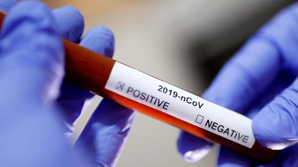 Científicos islandeses afirman haber encontrado cuarenta mutaciones del coronavirus