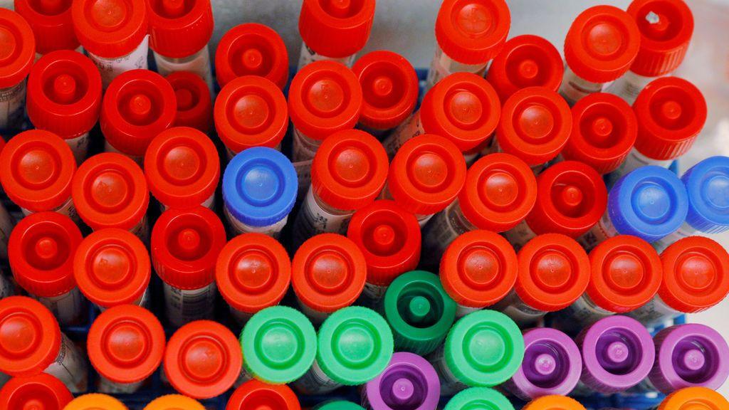 Los test rápidos de detección del coronavirus han llegado a España