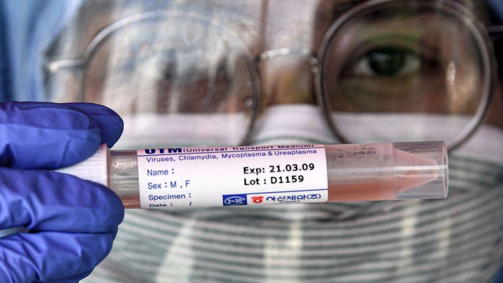 La sangre de un recuperado de coronavirus podría salvar a los contagiados más graves