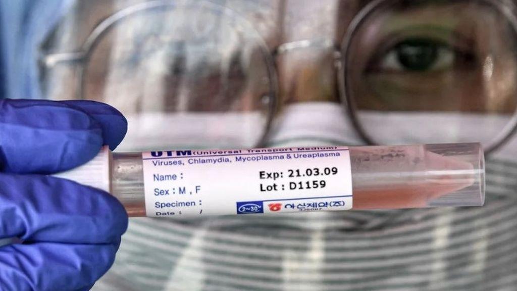 La sangre de un recuperado podría salvar la vida de los contagiados más graves