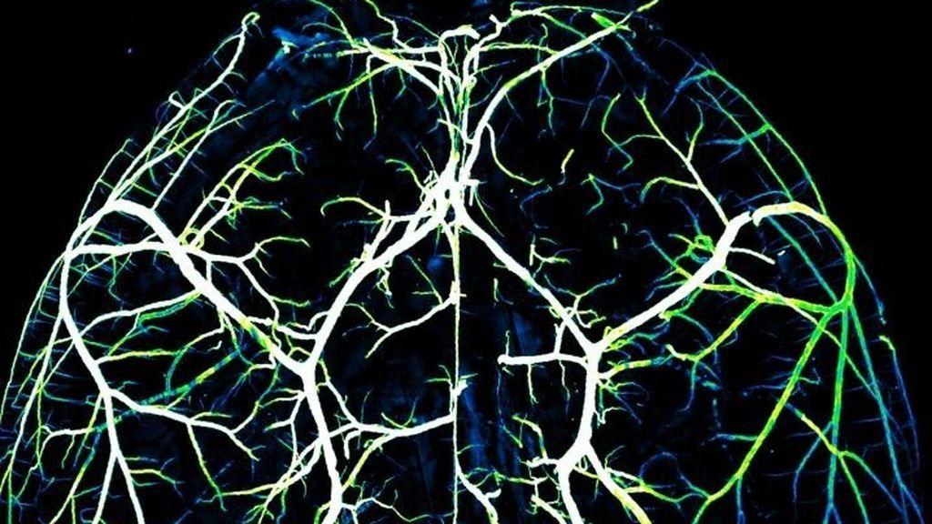 EuropaPress_2658131_arterias_cerebro