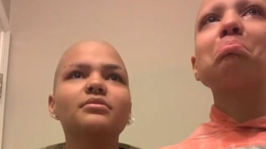 Se afeita las cejas en Instagram en solidaridad con su hermana afectada por el cáncer