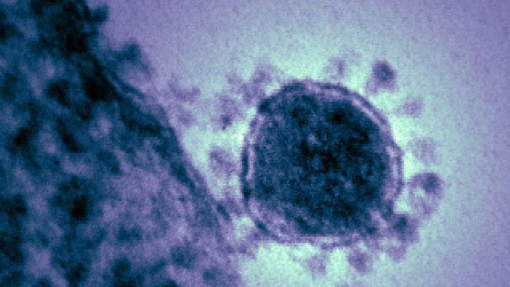"""El mayor experto infectólogo de EEUU: """"El coronavirus regresará en otoño"""""""