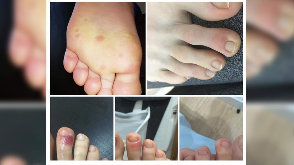 Erupciones en los pies, primera pista para detectar COVID-19 en adolescentes