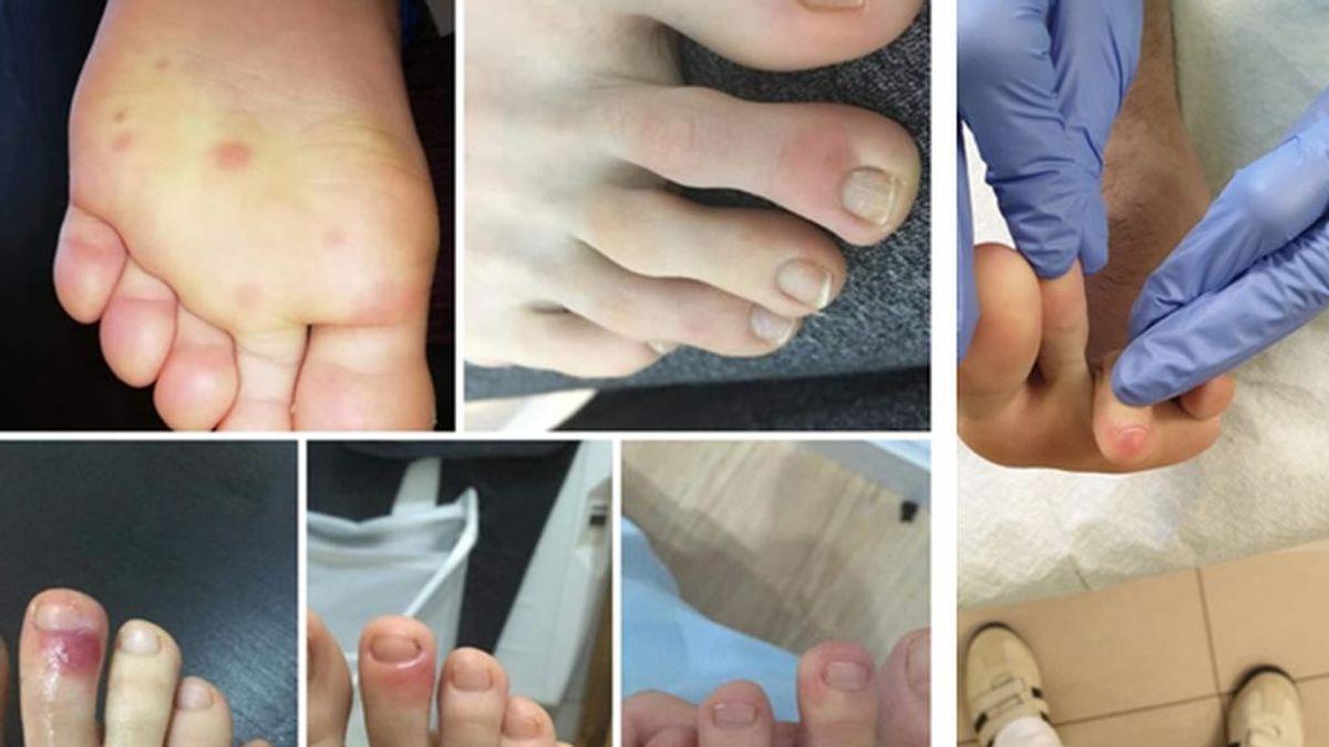 Lesiones cutáneas en los pies de los niños, un posible síntoma del coronavirus: qué hacer si aparecen