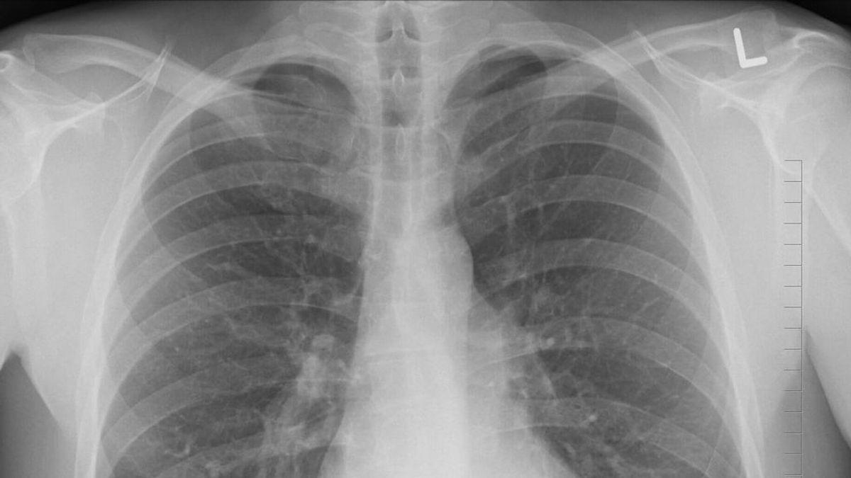 EPOC: la enfermedad que afecta a tus pulmones