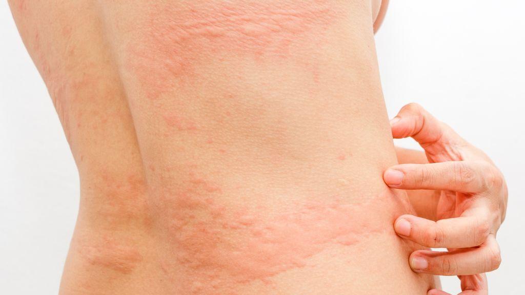 Dermatólogos españoles lanzan un estudio para conocer el impacto del coronavirus en la piel