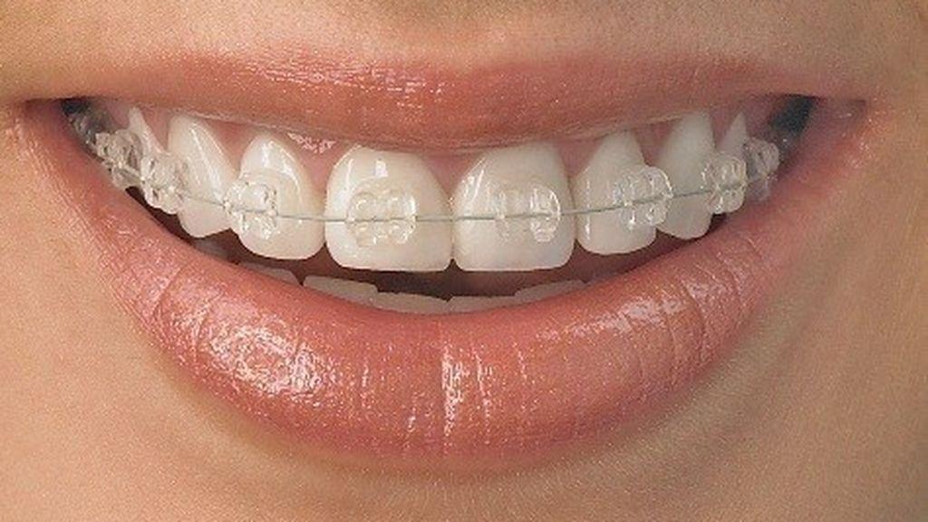 Los ortodoncistas hacen recomendaciones a los pacientes con ortodoncia durante el confinamiento