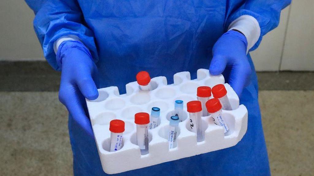 El coronavirus también puede afectar al intestino, según un estudio