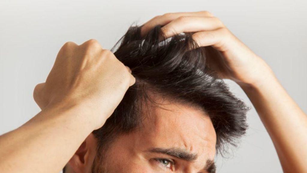 """""""El pelo se cae por muchas enfermedades, no necesariamente por COVID-19"""""""