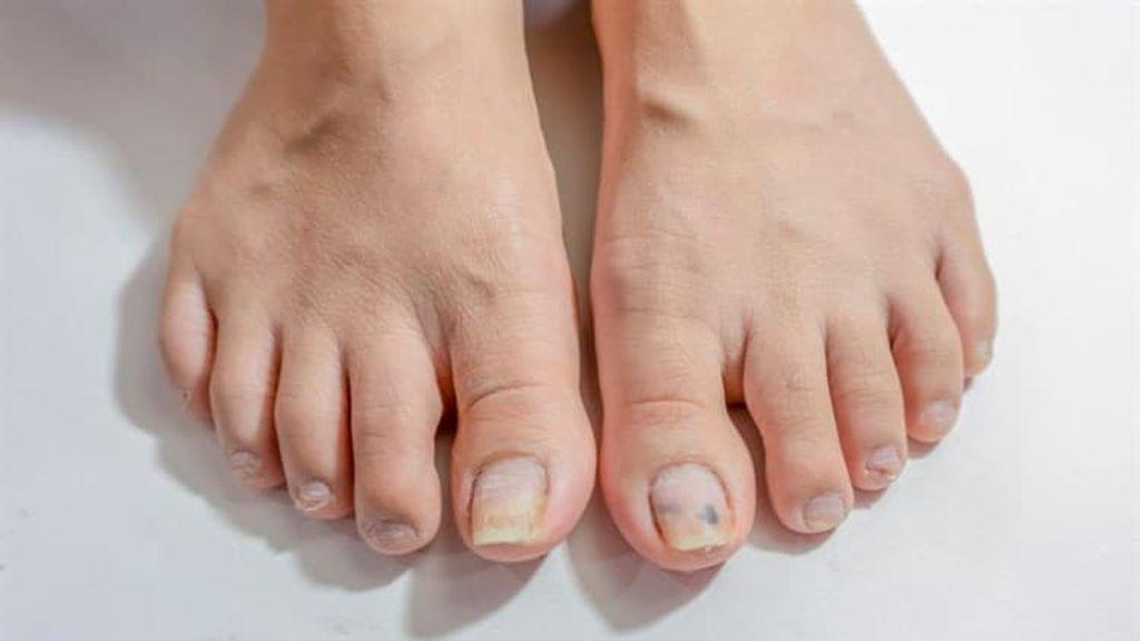 ¿Por qué salen hongos en las uñas de los pies?