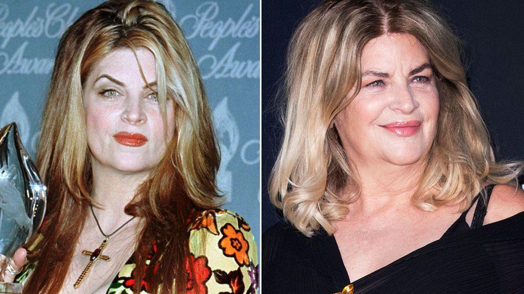 El antes y el después de Kirstie Alley (1998-2020)