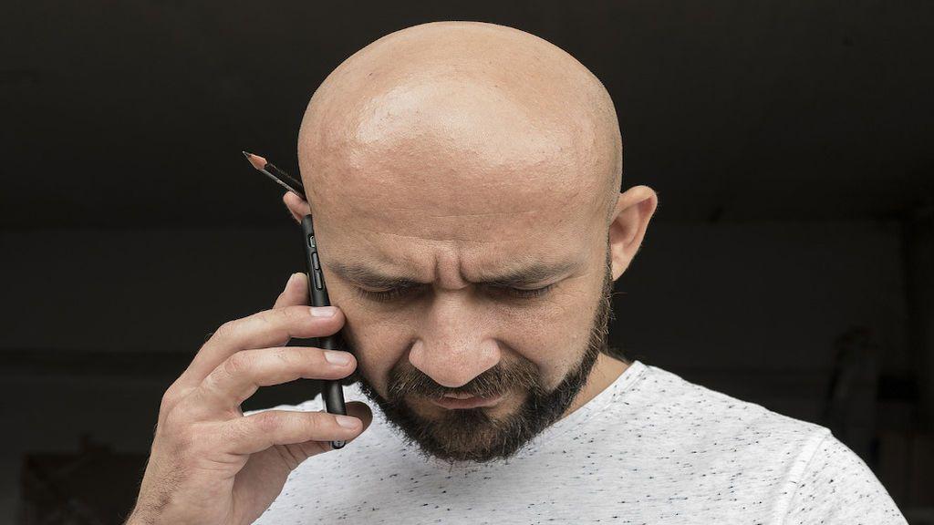 ¿Influye la contaminación para la pérdida del cabello?