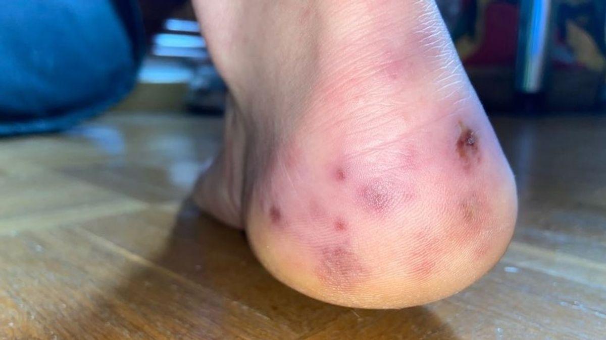 La historia de Alejandro: los síntomas raros del coronavirus en los pies que estudian los expertos