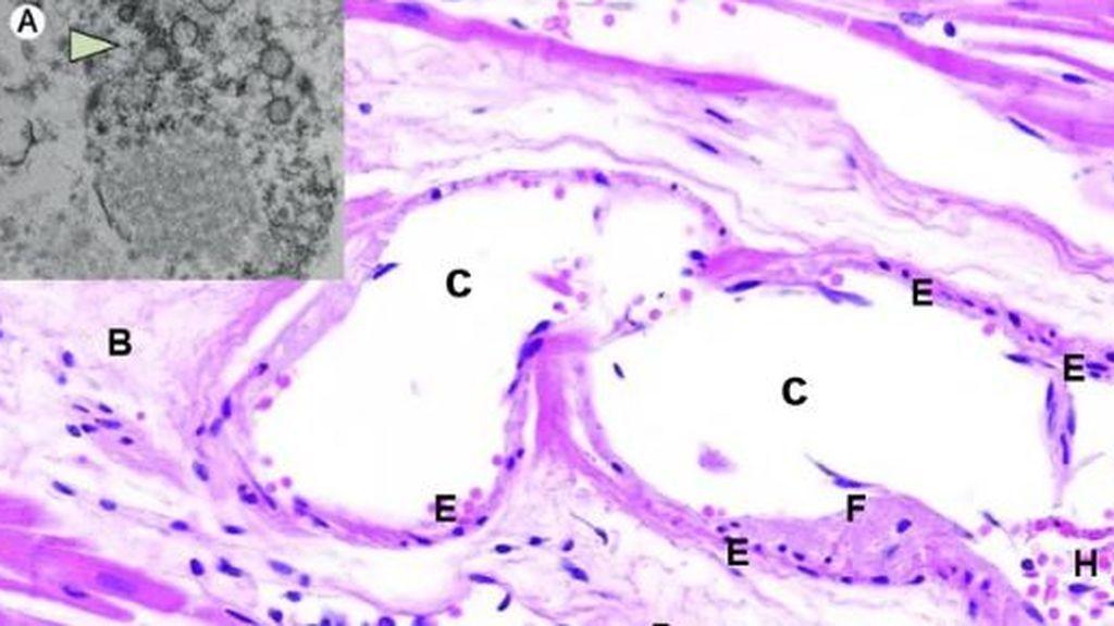 Formación de trombos y COVID-19