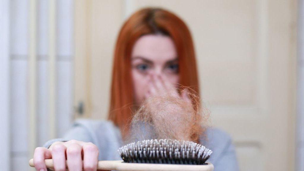 Cuando la caída del pelo es una cuestión de efluvio temporal
