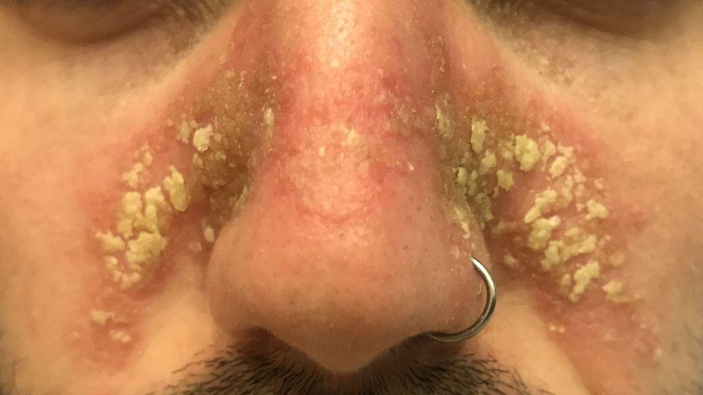 Los daños colaterales del uso de las mascarillas con el calor