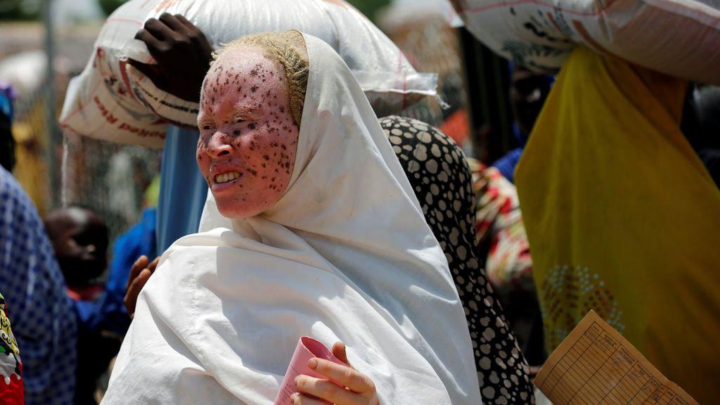 Albinismo... más de 50.000 menores albinos pueden ser asesinados alerta ONU