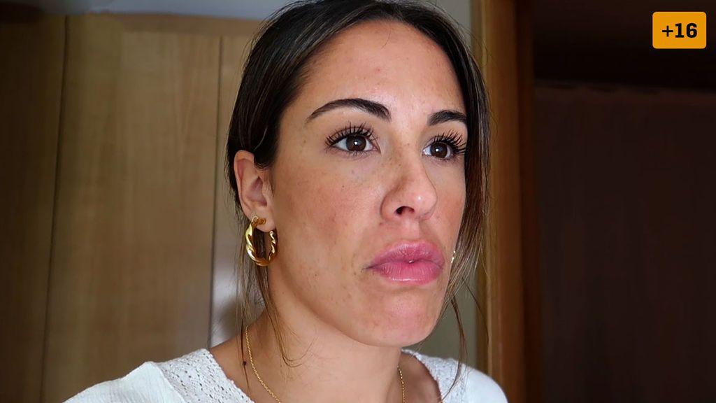 Susana Megan tiene un problema con su retoque de labios y quiere disolver el ácido (1/2)