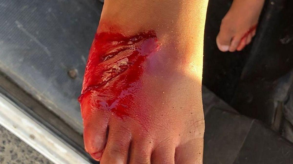 Un tiburón ataca a un niño de 6 años en Lanzarote: necesitó 20 puntos de sutura en su pie