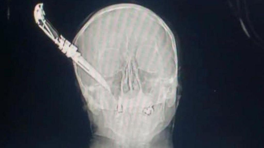 La radiografía de una agresión: el navajazo en la cabeza a un hombre que evitó un robo en Getxo