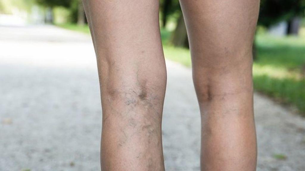 Varices, motivos de su aparición y cómo prevenirlas: lo peor, pasar mucho tiempo de pie o sentado
