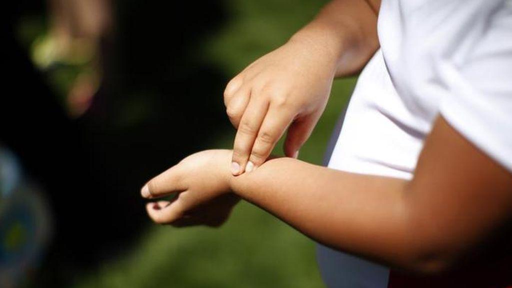 Casi el 40% de los niños españoles de entre 3 y 8 años tiene sobrepeso u obesidad, según un estudio