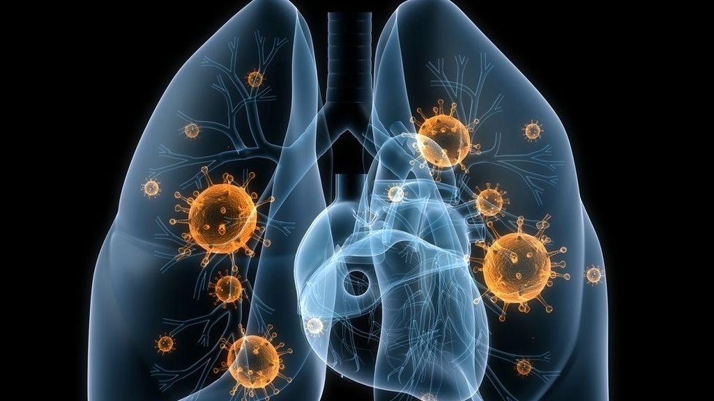 Aprobado el primer tratamiento contra el cáncer de pulmón más agresivo en 20 años