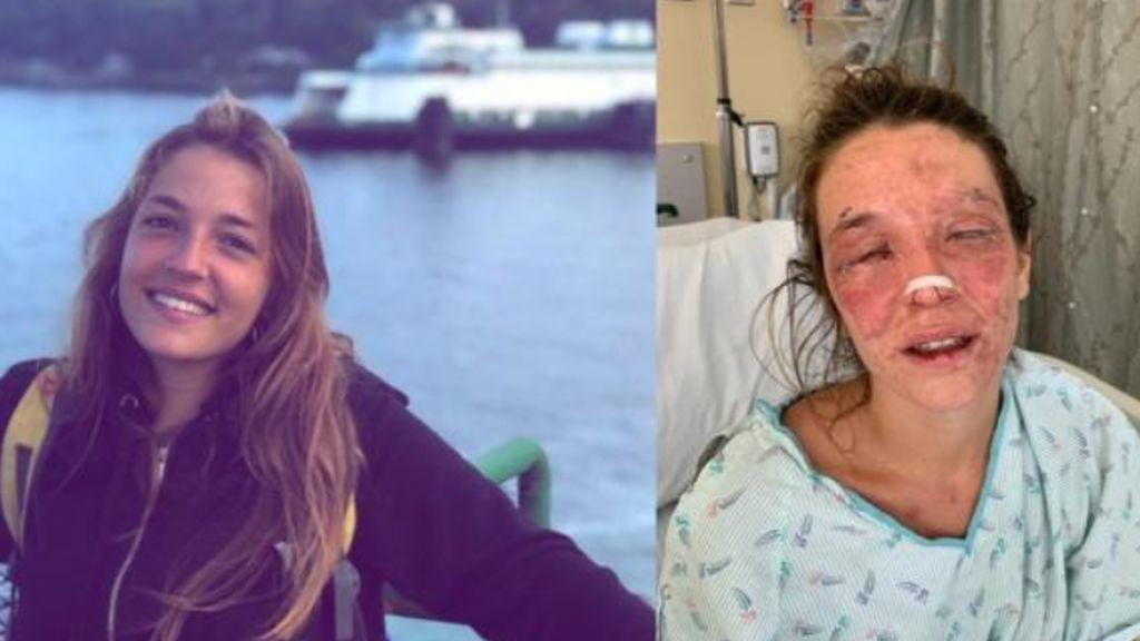 La terrible historia de Marta en EEUU: un accidente casero la deja casi ciega y ahora debe pagar las facturas