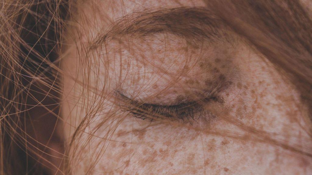 Tipos de manchas en la piel: síntomas y prevención