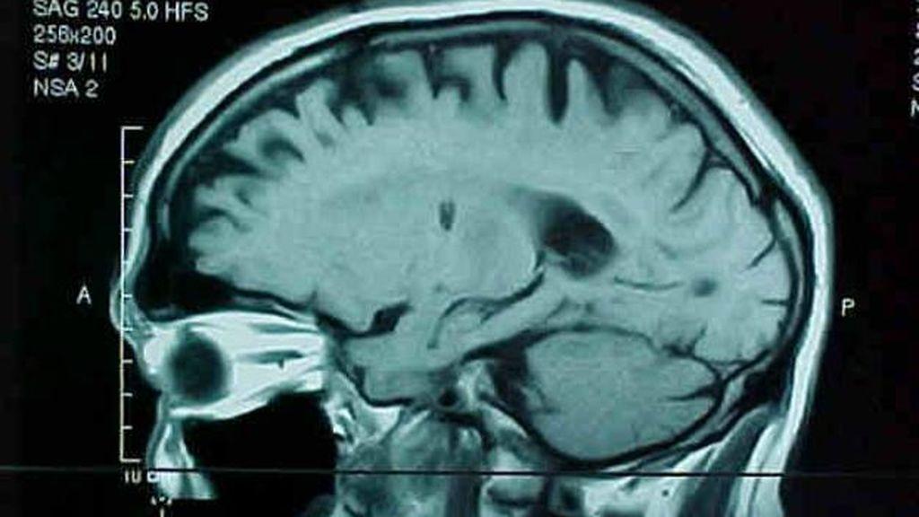 Una mujer sufre una lesión cerebral que le deja muda y cuando recupera tiene cuatro acentos distintos
